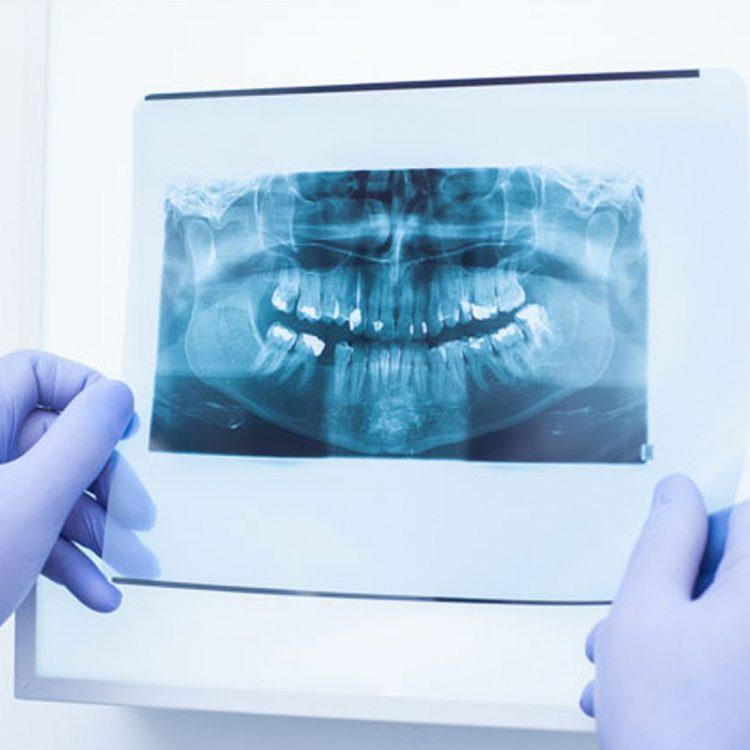 Chirurgia orale a Busto Arsizio, Varese